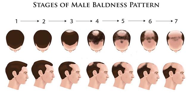 Why Hair Loss in Men, Causes Of Hair Loss in Men